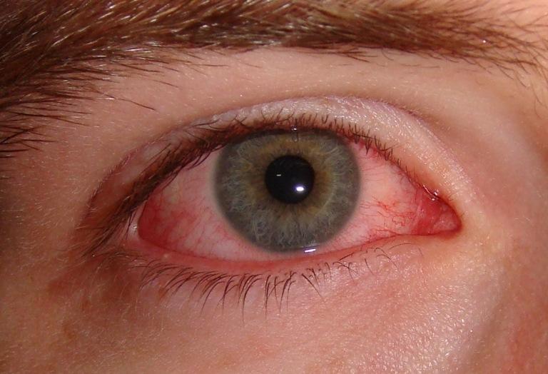 Признаки ожога глаз при сварочных работах